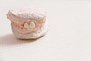 Clinic ; Close-Up ; Color Image ; Dentist ; Dentur
