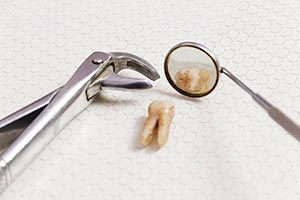 Clinic ; Close-Up ; Color Image ; Dentist ; Equipm