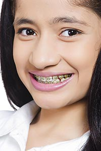 Indian Teenager Girl Braces Teeth